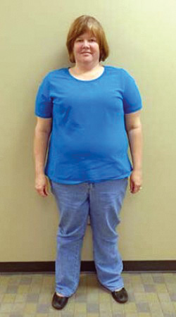 Gastric Bypass Before